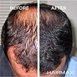 HairMax Ultima 12 LaserComb Hair
