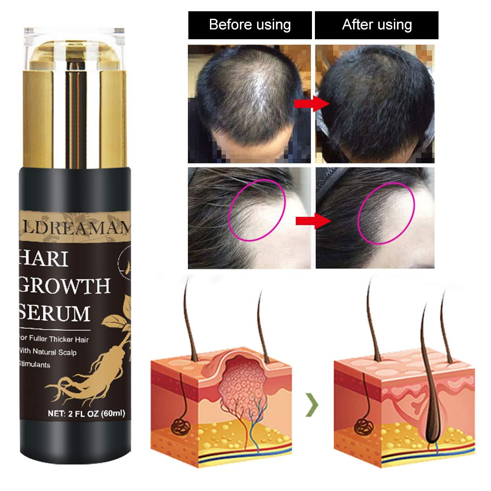 Serum Per Capelli, Ricrescita Capelli, Hair Serum, Ricrescita Capelli Donna, anticaduta capelli uomo,