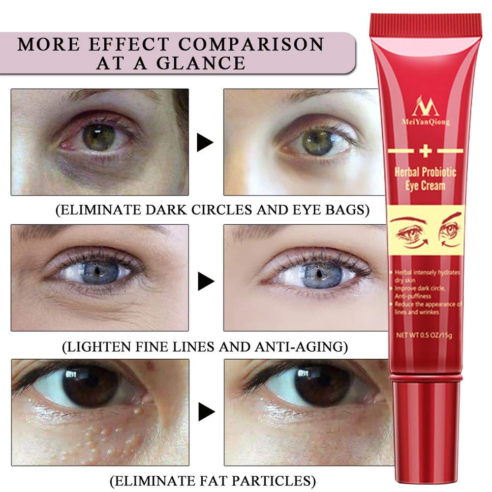 Exteren Eye Cream Gel For Dark Circles Puffiness Wrinkles Bags Most Effective Anti-Aging Skin Care Accessories (Red) by Exteren (Image #8)