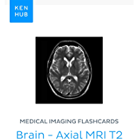 Medical Imaging flashcards: Brain - Axial MRI T2: Learn all bones, nerves, organs, mri, arteries and muscles on the go…