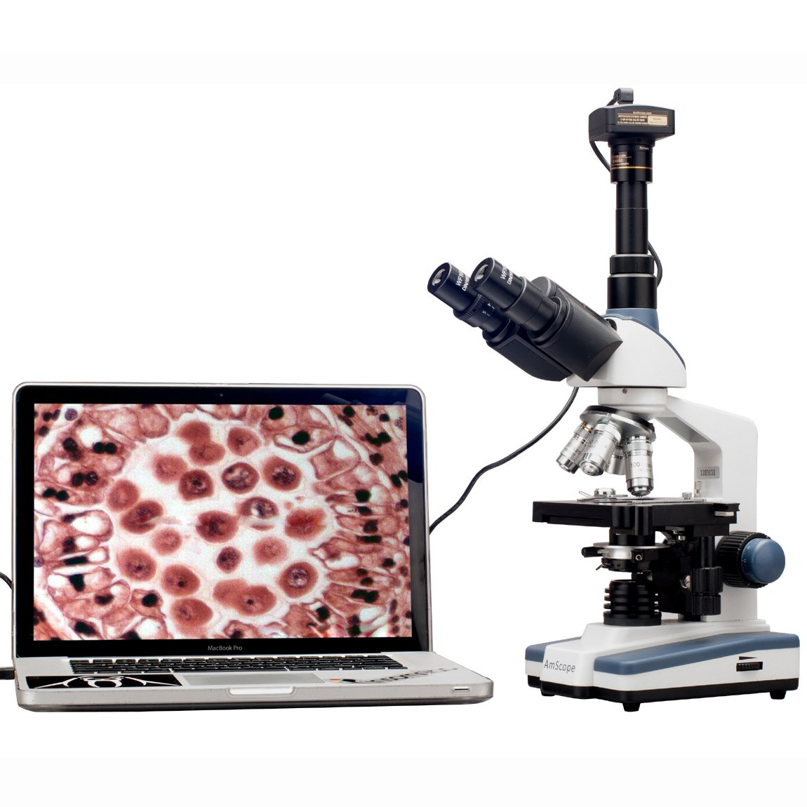 AmScope T120B-5M Digital Professional Siedentopf Trinocular Compound Microscope, 40X-2000X Magnification, WF10x and WF20x Eyepieces, Brightfield, LED Illumination, Abbe Condenser with Iris Diaphragm, Double-Layer Mechanical Stage, 100-240VAC, Includes 5MP