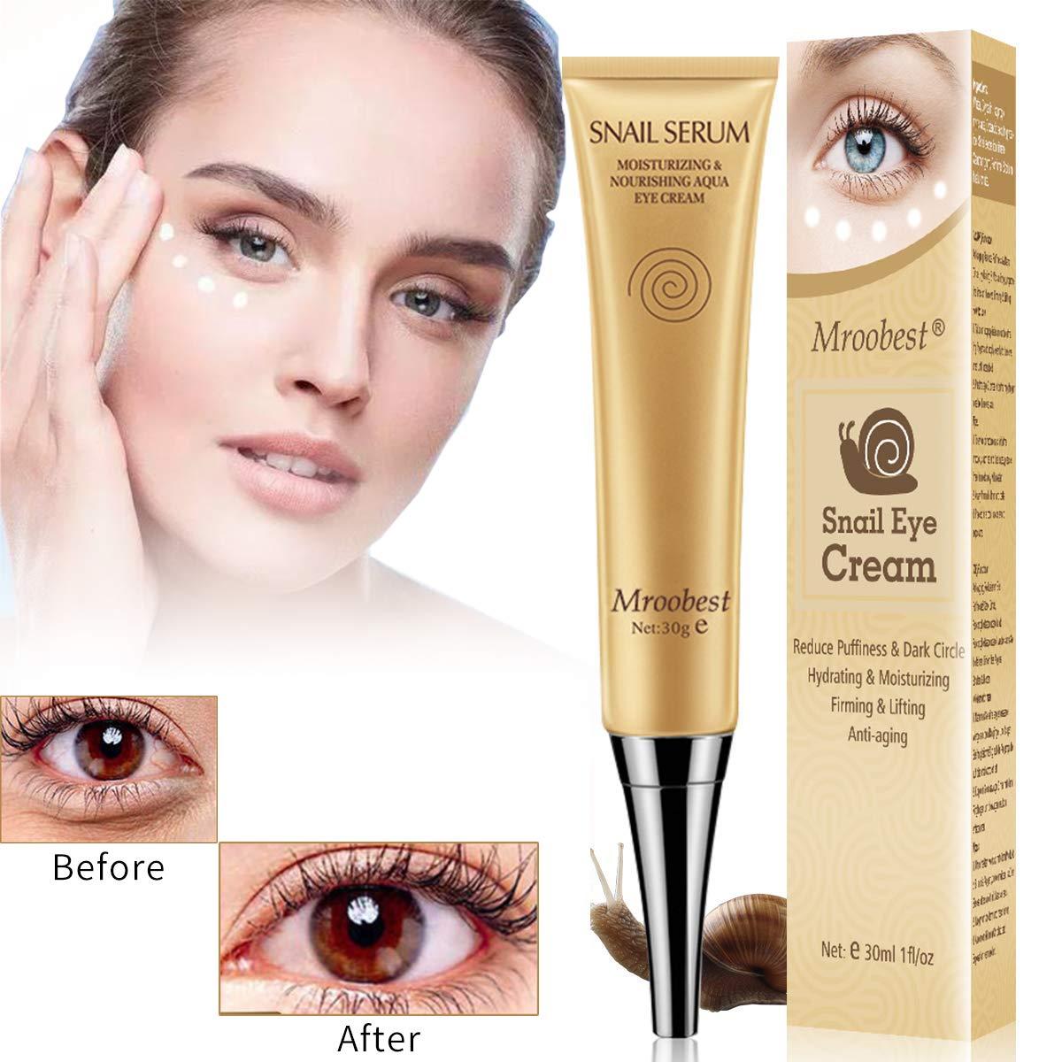 Under Eye Cream, Eye Repair Cream, Anti-Aging Eye Cream, Eye Cream for Dark Circles & Puffiness & Under Eye Bags, Nourishes Skin & Fights Wrinkles, Rapid Wrinkle Repair Eye Skin by CIDBEST