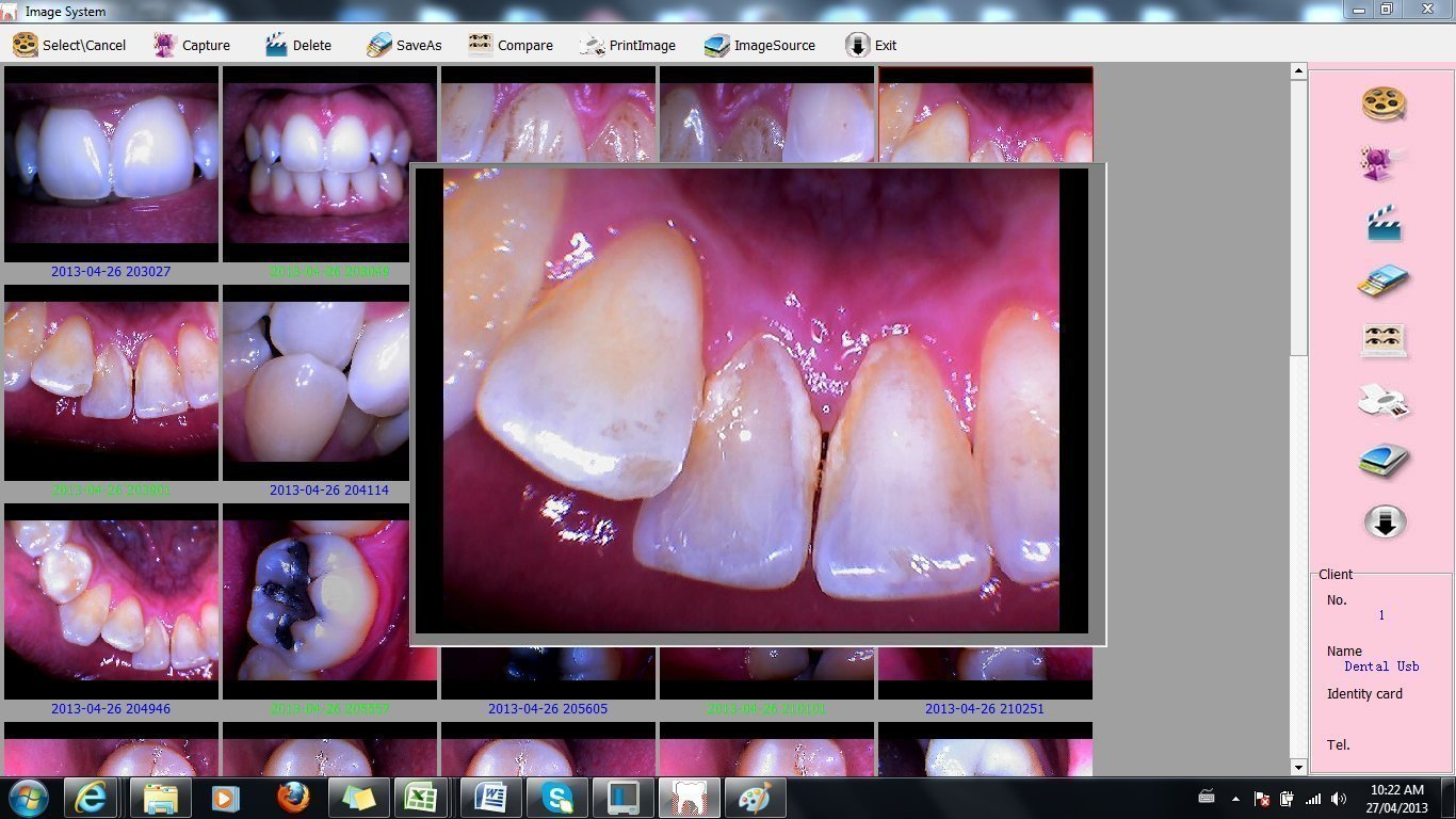 ProDENT DIGITAL INTRAORAL USB DENTAL CAMERA IMAGING LAB EQUIPMENT by ProDENT (Image #6)