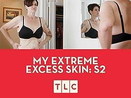 Amazon co uk: Watch My Extreme Excess Skin- Season 2 | Prime