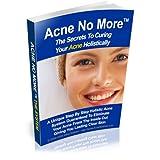 Skin Care : Acne No More, acne scars, acne treatment