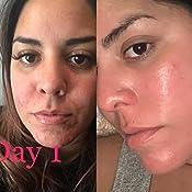 Amazon Com Acne Treatment Differin Gel Acne Spot Treatment For