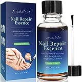 Amada Pure Fungus Stop, Fungus Nail Care Solution –Toenail & Fingernail Fungus Remover, Restores Discolored & Damaged Nails t