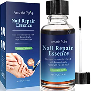 Amada Pure Toenail Fungus Treatment, Nail Fungus Treatment, Fungus Stop, Fingernail Fungus, Fungi Nail and Fungal Nail Solution, Nail Fungus Remover, Toenail Fungus Medication 1 Fl. Oz (30ml)