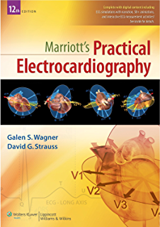 Amazon ecg in ten days second edition ebook david r ferry marriotts practical electrocardiography fandeluxe Image collections
