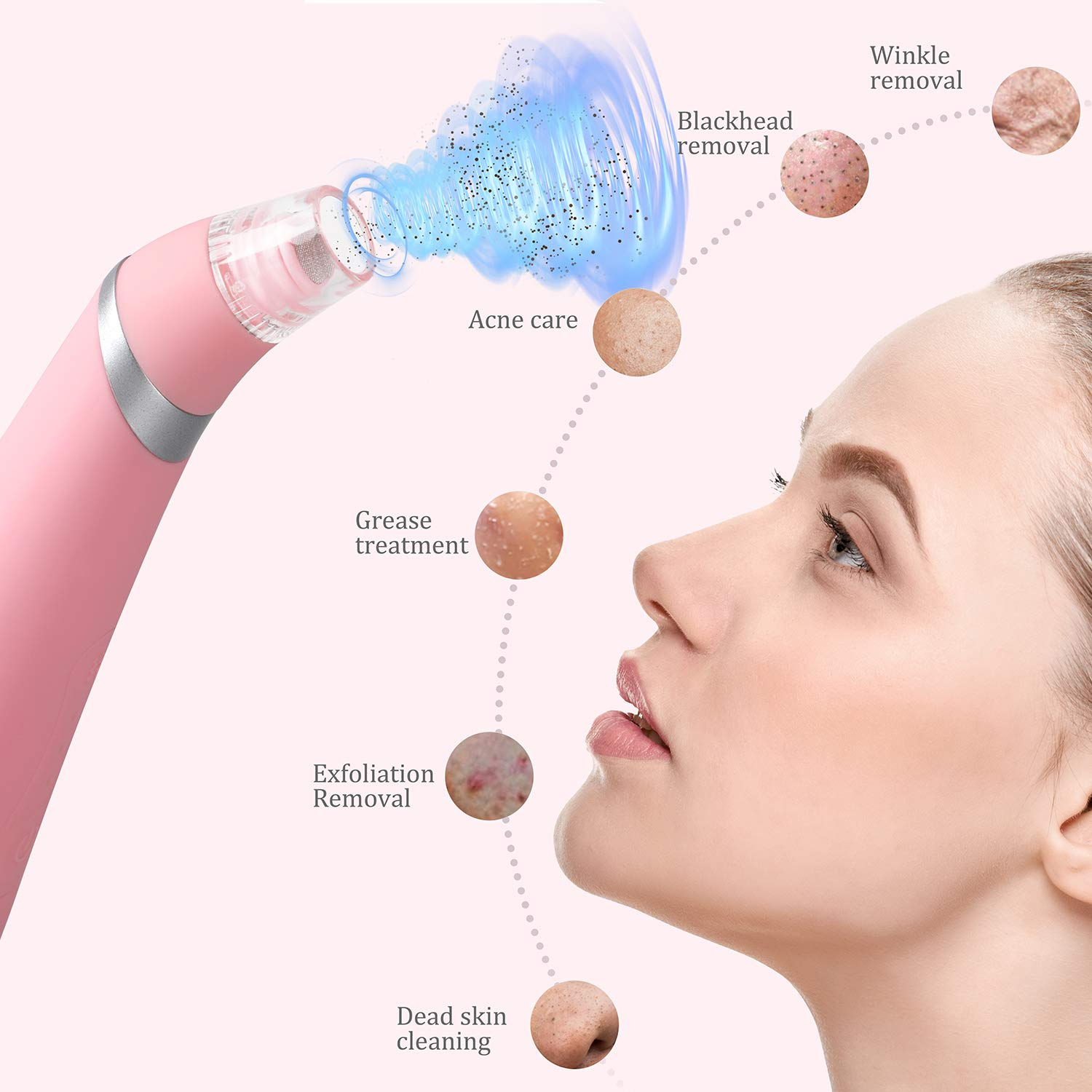 Myladis Rechargeable Electric Blackhead Remover Vacuum - Powerful Facial Pore Vacuum Cleaner Tool for Black Head, Whitehead & Acne Removal with 6 Microdermabrasion & Suction Heads - Upgraded - Pink: Beauty