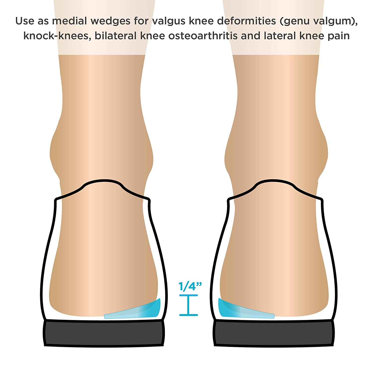 Amazon.com: BraceAbility Medial & Lateral Heel Wedge Silicone ...