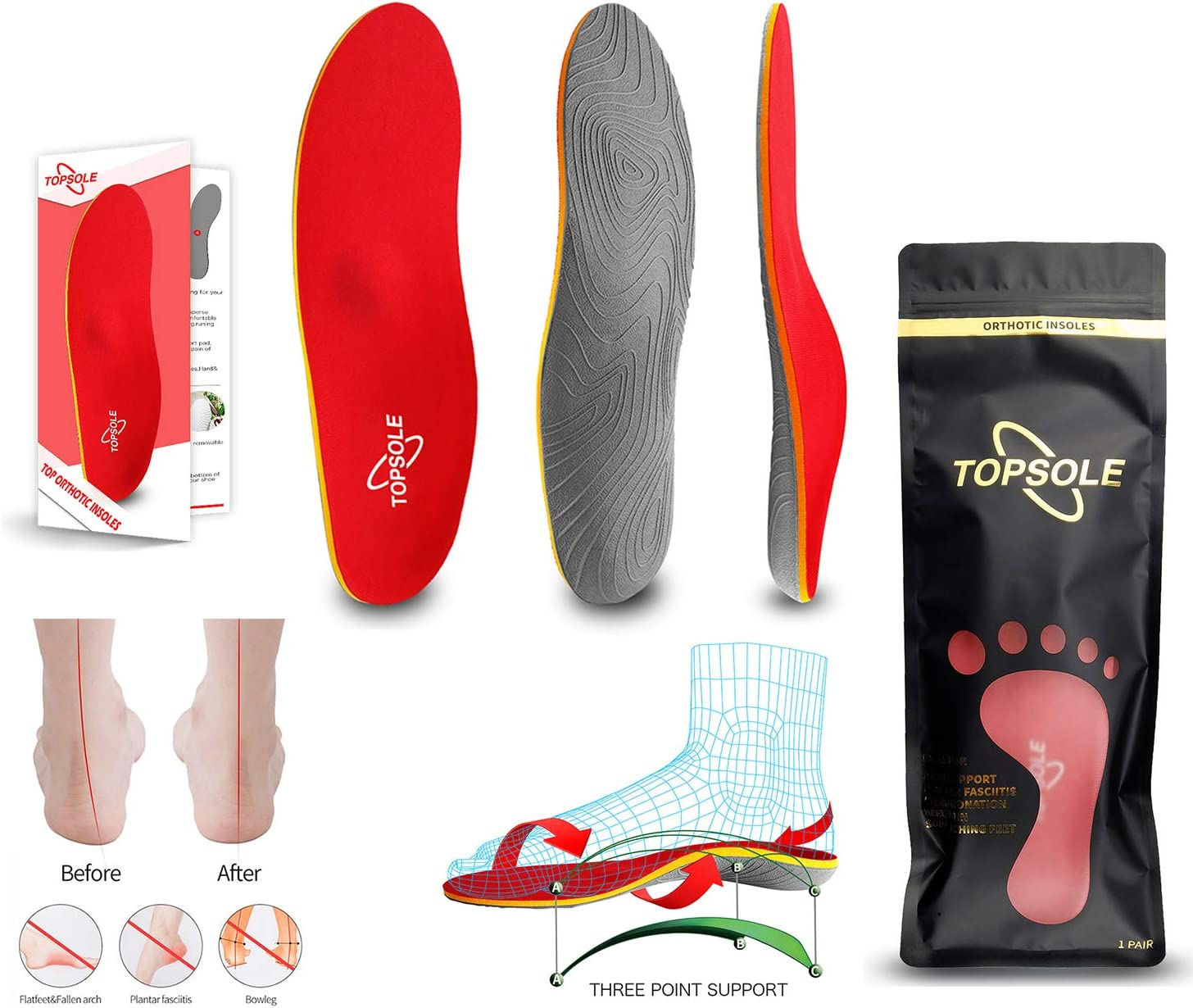 Topsole Flat Feet Metatarsal Orthotic Insoles Arch Support Full Length Inserts Metatarsal Pinnacle Plus for Metatarsalgia, Plantar Fasciitis, Heel Pain, Big Toe, Pain Forefoot Pain: Health & Personal Care