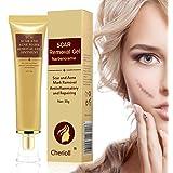 Scar Cream,Riparazione Crema,Acne Scars,Acne Scar Removal Cream,Nuovo Trattamento e Vecchie Cicatrici,Pimple Scar Free Treatment Cream