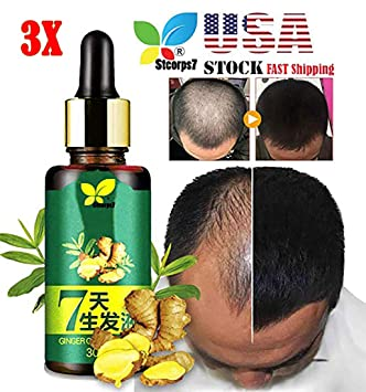 Amazon.com: Esencia para el crecimiento del cabello ...