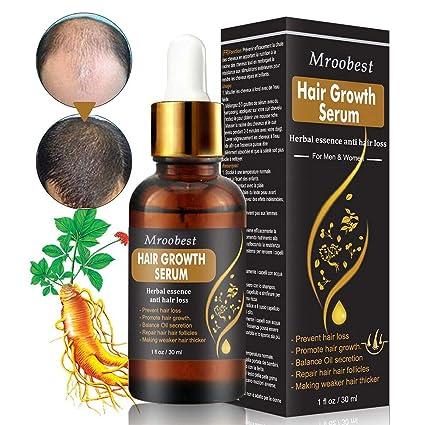 Amazon.com: Hair Growth Serum, Hair Treatment Serum Oil ...