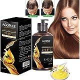 Hair Growth Shampoo for Men & Women, Anti-Hair Loss Shampoo, Hair Loss shampoo, Natural Old Ginger Hair Care Shampoo…