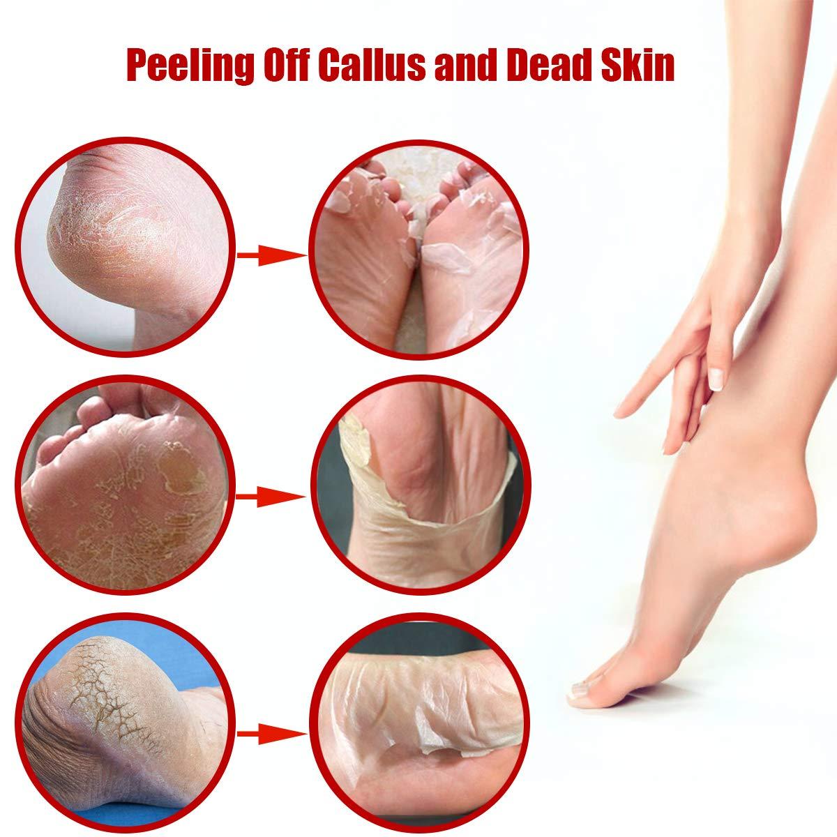 Fußmaske, 2 Paar Fuß Peeling Maske Peeling Dead Skin Maske Hornhautentferner Socken Rose Exfoliating Foot Maske Samtweiche und zarte Füße für Männer Frauen