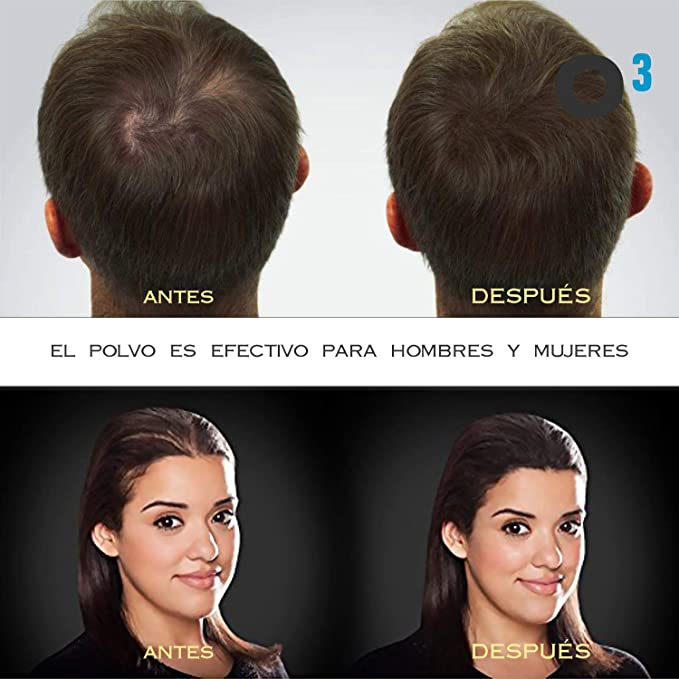 O³ Fibras Capilares Negro 27,5 Gramos Para Caida Del Cabello - Keratin Fibers 100% Natural Para Disimular Calvicie Al Instante| Maquillaje Capilar Para ...