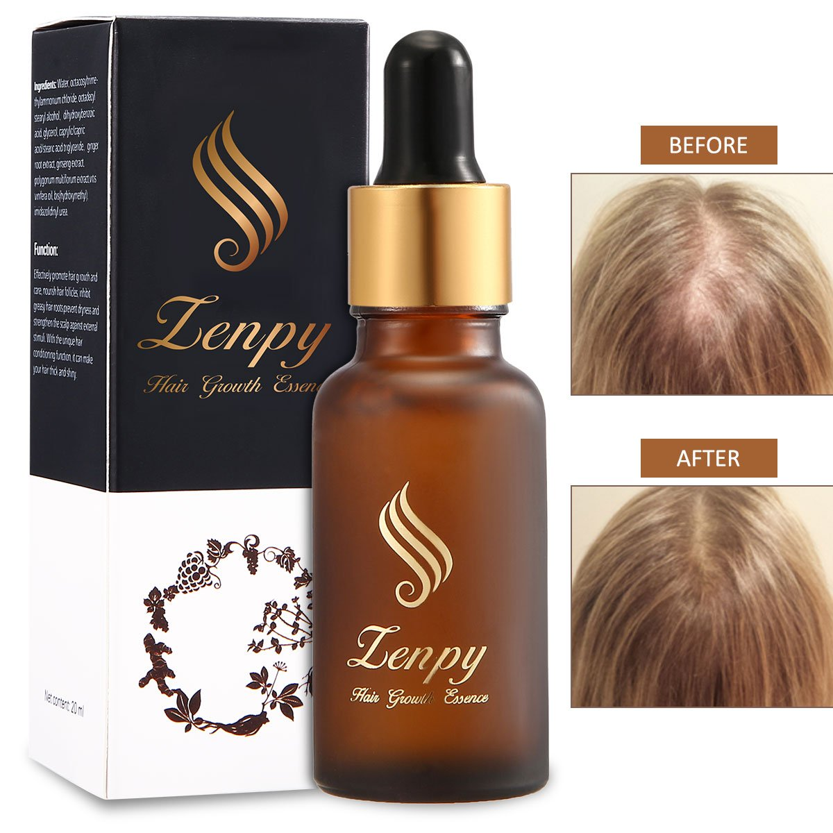 Zenpy Hair Growth Essence Oil Strengthens Hair Roots Grow Longer Anti Hair Loss & Hair Thinning Treatment Hair Serum Professional Hair Care Styling Products -20ml by Zenpy (Image #1)