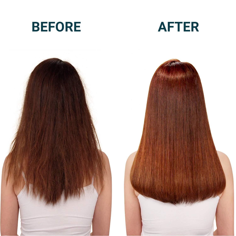 헤드스파7 헤어트리트먼트  Anti Hair Loss Treatment