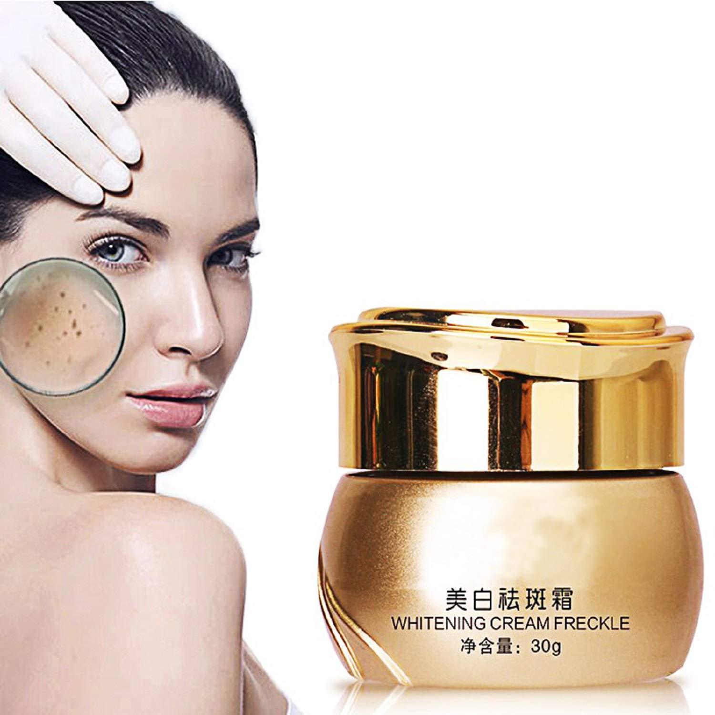 Amazon com: Whitening Cream Melasma Pigmentation Removal Dark Spot
