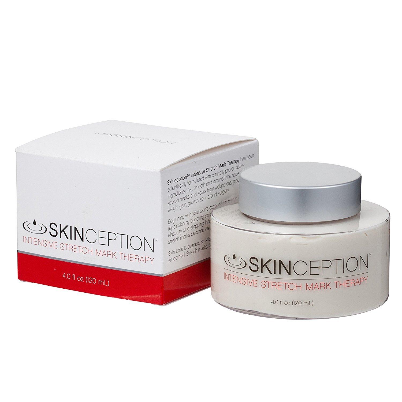 Skinception stretch mark