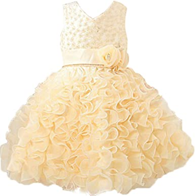 yellow dress 2t itch
