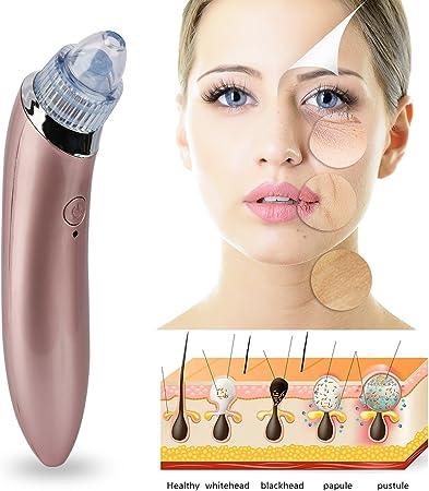 GPCT Aspirador de poros faciales eléctrico puntos negros con ...