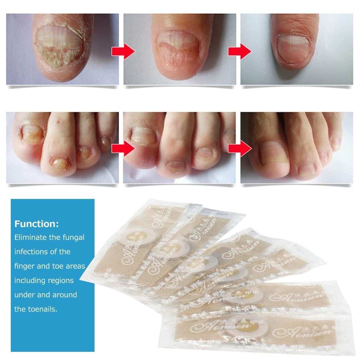 Nail Fungus,Antifungal Nail Treatment,Toenail Fungus Treatment,Antifungal Nail Gel,Removal of Fingernail and Toenail Fungus by LDREAMAM (Image #3)