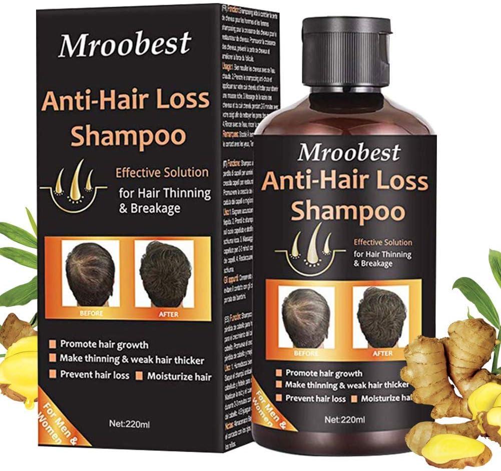 Champú, Champú antipérdida de cabello, ayuda a detener la pérdida de cabello, crecimiento rápido del cabello, tratamiento para la pérdida de cabello para hombres y mujeres (220 ml)