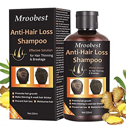 Champú, Champú antipérdida de cabello, ayuda a detener la pérdida de cabello, crecimiento rápido del cabello, tratamiento para la pérdida de cabello ...