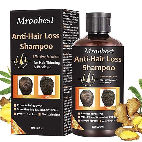 Champú, Champú antipérdida de cabello, ayuda a detener la pérdida ...