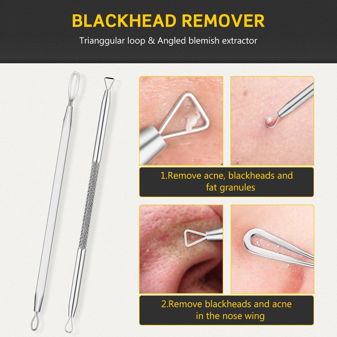 Blackhead Extractor Comedone Treatment Whitehead Image 3