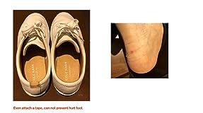 Shoes hurt foot!