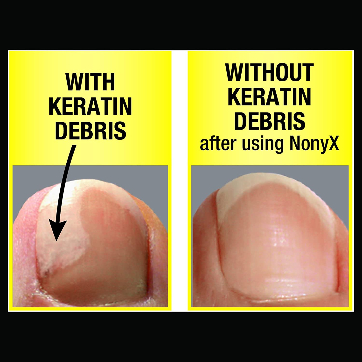 Amazon.com: NONYX Fungal Nail Clarifying Gel, Clears Out Keratin ...
