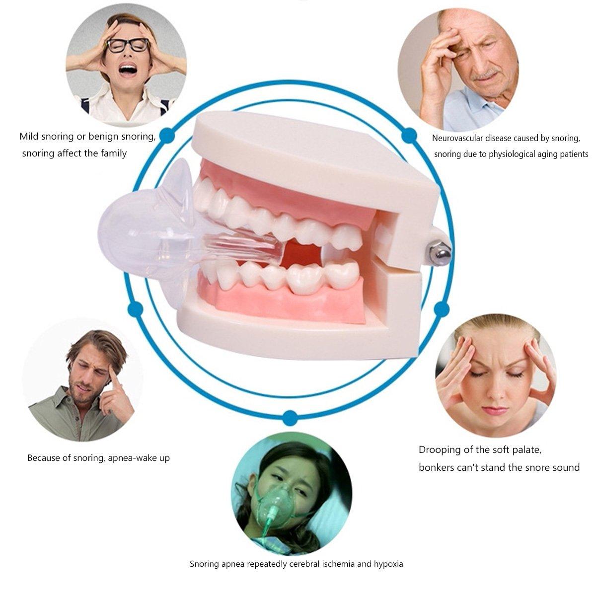 Ndier Schnarchen Lösung - Effektive Schnarchstopper & Zähne Schleifen Lösung - reduziert Volumen und Frequenz - verbessert Schlaf & Nacht Rest Qualität