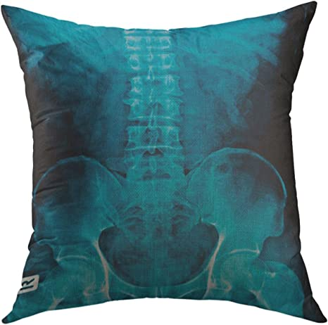 Amazon Com Mugod Pillow Cases White Fracture X Ray Spine Show Spur Of Vertebral Body Degenerative Mild Scoliosis Bone Human Throw Pillow Cover For Men Women Boys Cushion Cover 20x20 Inch Home