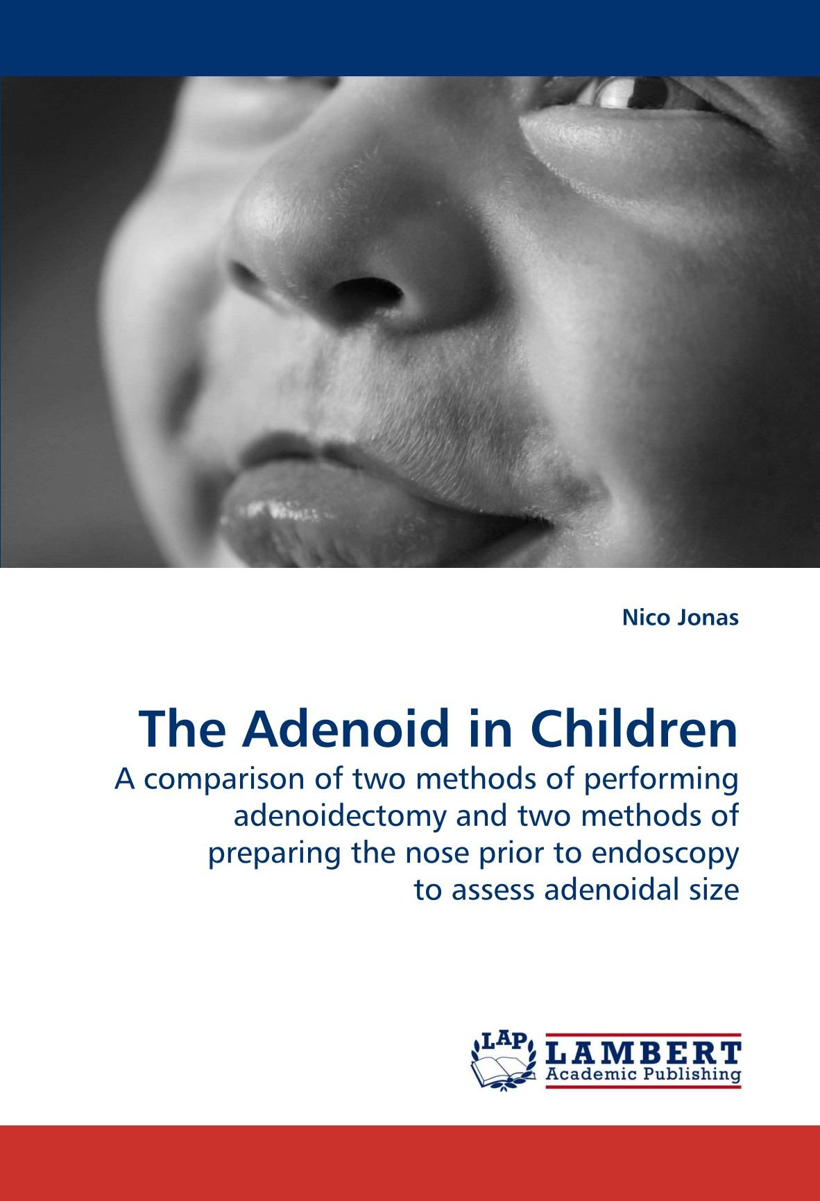 The Adenoid In Children A Comparison Of Two Methods Of Performing