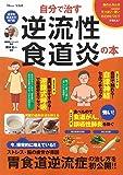 自分で治す逆流性食道炎の本 (TJMOOK)