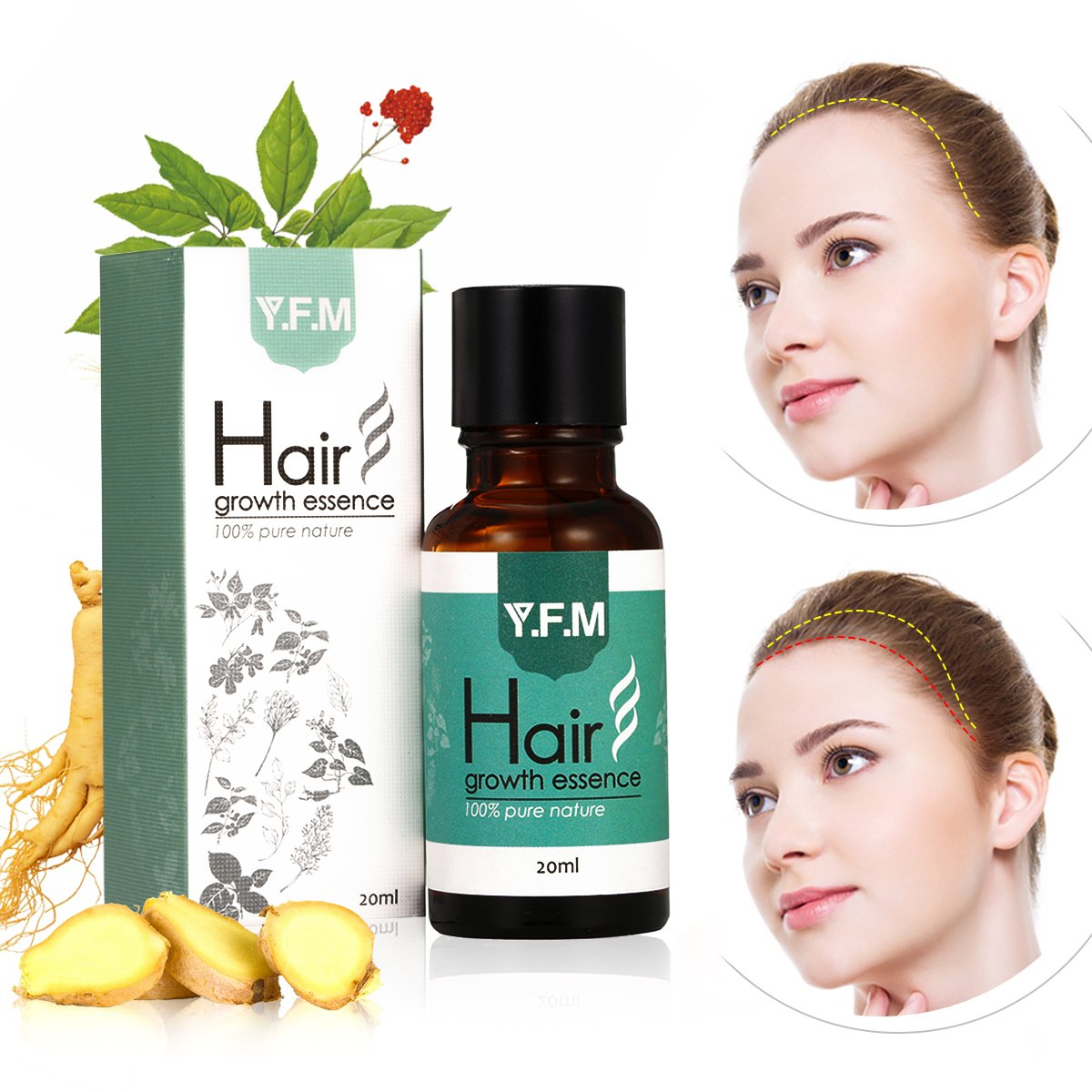 Y.F.M Hair Growth Essence oil, Mother's Day, Father's Day Gift, Hair Regrowth Treatment, Hair Loss Treatment for Men & Women Mother's Day Father's Day Gift Luckyfine