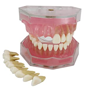 Dental Implant Teeth Model Study Teach Standard Model with Removable Teeth