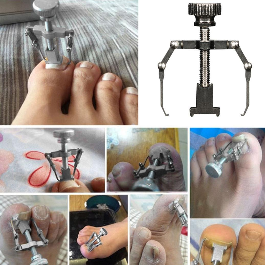 DZT1968 1pc Waterproof stainless steel Ingrown Toe Nail Recover Correction Tool Pedicure Toenail Fixer Foot Nail Care