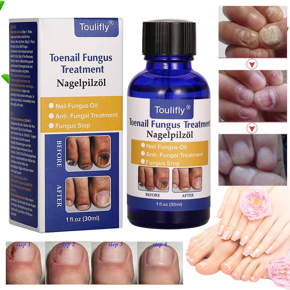 Amazon.com : Fungus Stop, Natural Nail Treatment, Nail Fungus ...