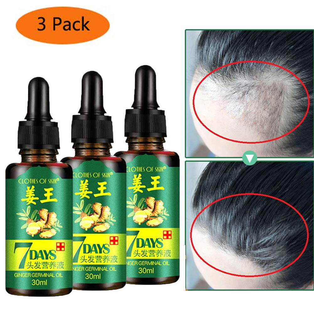 Hair Growth Oil Serum Liquid Hair Loss for Women & Men Dense Thicken Hair by QUNGCO