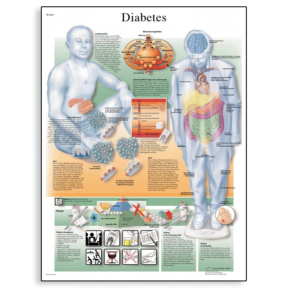 3B Scientific VR1441L Glossy Laminated Paper Diabetes Mellitus Anatomical Chart, Poster Size 20' Width x 26' Height Poster Size 20 Width x 26 Height