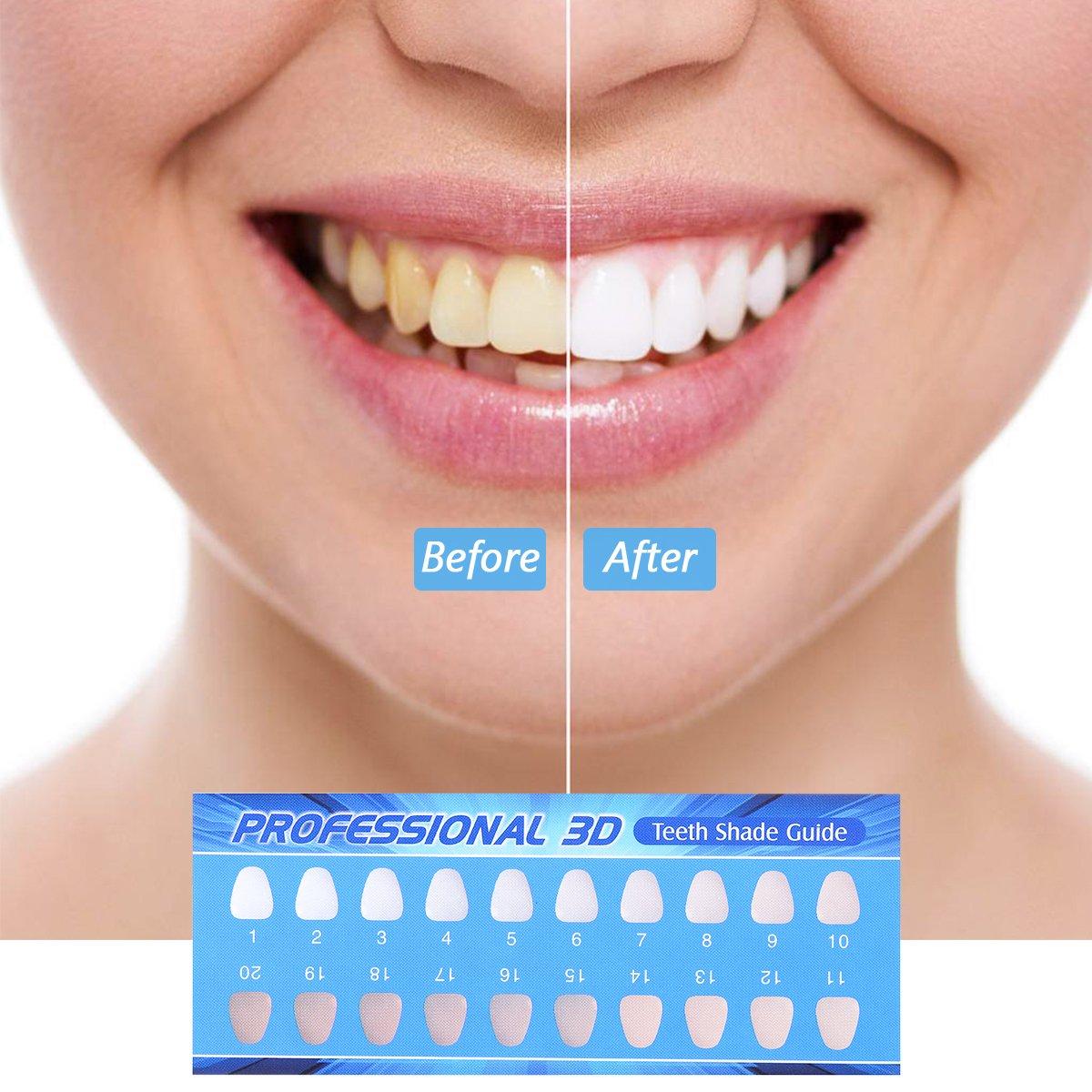 sistemas de blanqueamiento dental