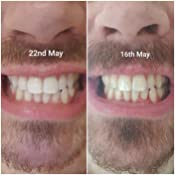 Teeth Whitening Strips Developed By Irish Dentists With Minimal