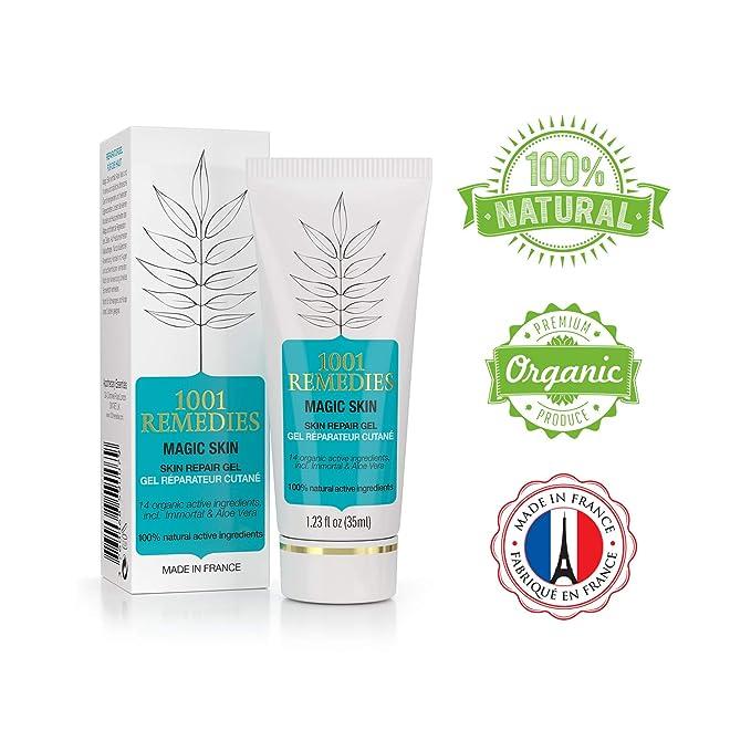 1001 Remedies Crema Facial Tratamiento Acné - Elimina Espinillas y Cicatrices - Crema en Gel Natural 100% para Eccemas, Psoriasis, Rosácea, Puntos Negros ...