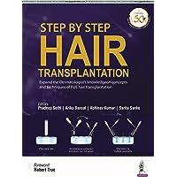Step by Step Hair Transplantation
