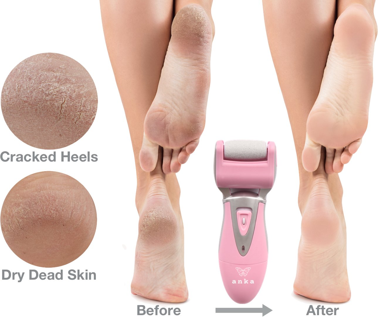 **70% Off Summer Sale ** Rechargeable Pedicure Foot File - Electric Callus Remover & Foot Grinder for Rough & Dead Skin for Professional Home Spa (Wet or Dry Feet) by Anka (Image #3)